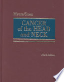 Cancer of the Head and Neck