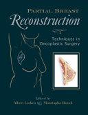 Partial Breast Reconstruction Book