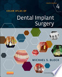 Color Atlas of Dental Implant Surgery - E-Book