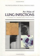 An Atlas of Lung Infections