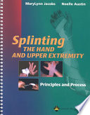 Splinting The Hand And Upper Extremity Book PDF