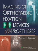 Imaging of Orthopaedic Fixation Devices and Prostheses