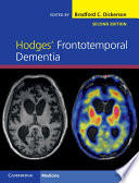 Hodges  Frontotemporal Dementia