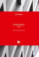 Arthroplasty Book PDF