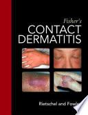 Fisher s Contact Dermatitis Book
