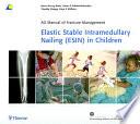 Elastic Stable Intramedullary Nailing Esin In Children