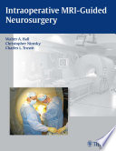 Intraoperative MRI Guided Neurosurgery