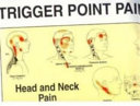 Trigger Point Pain Patterns