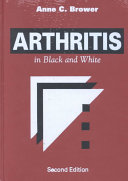 Arthritis in Black and White Book