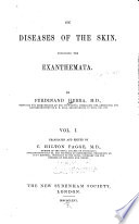 On Diseases of the Skin  Including the Exanthemata