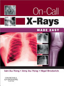 Pdf On-Call X-Rays Made Easy E-Book