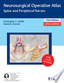 Neurosurgical Operative Atlas  Spine and Peripheral Nerves