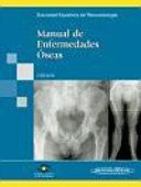 Manual De Enfermedades Oseas / Bone Diseases Manual ebook