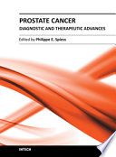 Prostate Cancer   Diagnostic and Therapeutic Advances