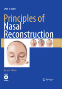 Principles of Nasal Reconstruction Book