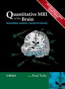 Quantitative MRI of the Brain