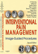 Interventional Pain Management  Image Guided Procedures