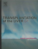 Transplantation Of The Liver Book PDF