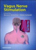 Vagus Nerve Stimulation  Second Edition Book