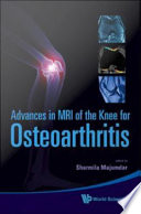 Advances in MRI of the Knee for Osteoarthritis Book