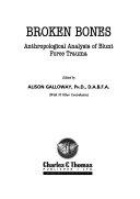Broken Bones ebook