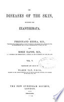 On Diseases of the Skin  Including the Exanthemata Book