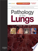 """Pathology of the Lungs E-Book: Expert Consult: Online and Print"" by Bryan Corrin, Andrew G. Nicholson"