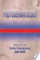 Photodermatology