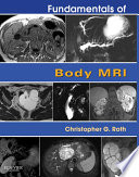 Fundamentals Of Body Mri E Book