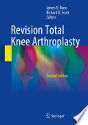 """Revision Total Knee Arthroplasty"" by James V. Bono, Richard D. Scott"