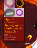 Optical Coherence Tomography in Cardiovascular Research