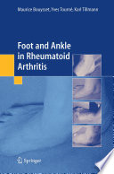 Foot And Ankle In Rheumatoid Arthritis Book PDF