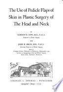 The Use of Pedicle Flaps of Skin in Plastic Surgery of the Head and Neck