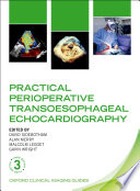 Practical Perioperative Transoesophageal Echocardiography
