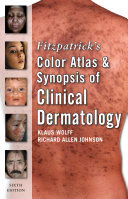 Fitzpatrick S Color Atlas And Synopsis Of Clinical Dermatology Sixth Edition Book PDF
