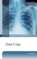 Pocket Guide to Chest X rays