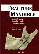 Fracture Mandible [Pdf/ePub] eBook