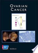 Ovarian Cancer Book PDF
