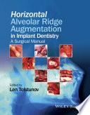 Horizontal Alveolar Ridge Augmentation in Implant Dentistry