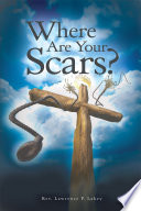 Where Are Your Scars