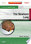 The Newborn Lung  Neonatology Questions and Controversies E Book Book