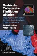 Ventricular Tachycardia   Fibrillation Ablation