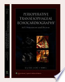 Perioperative Transesophageal Echocardiography Book
