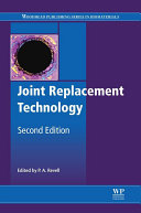Joint Replacement Technology