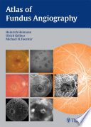 Atlas Of Fundus Angiography Book PDF