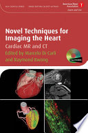 Novel Techniques For Imaging The Heart Book PDF