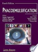 Phacoemulsification, Fourth Edition