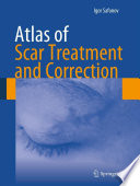 Atlas of Scar Treatment and Correction
