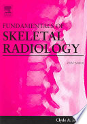 Fundamentals of Skeletal Radiology Book