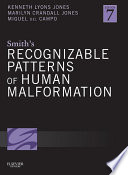 Smith s Recognizable Patterns of Human Malformation E Book Book